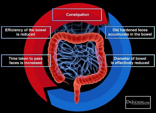 image graphic of colon and intestines re: constipation